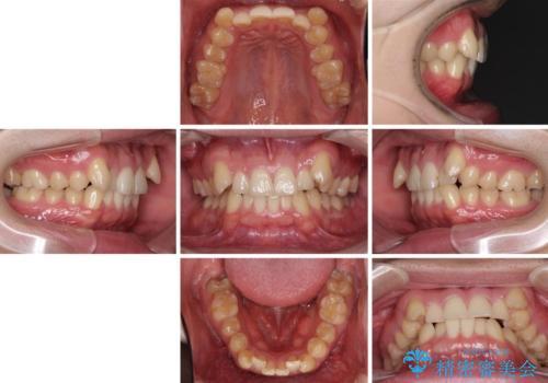 気になる八重歯を抜歯 補助装置を用いたインビザライン矯正の治療前