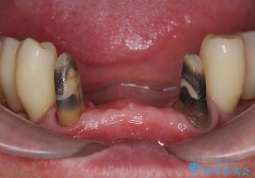 「 歯周病 再生治療 」再生治療で歯を残すの治療中