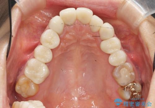 [ メタルフリー治療 ]  金属のない口腔内にしたいの治療後
