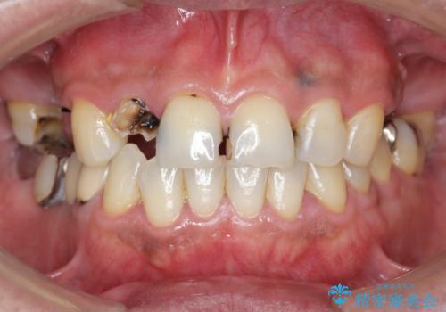 インプラント治療・セラミック治療を含む  全顎的虫歯治療の症例 治療前