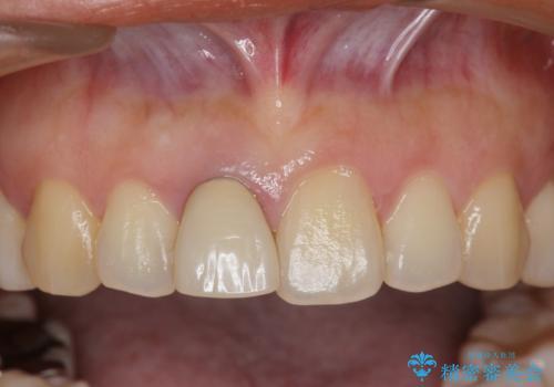 オーダーメイドで造る、自然な前歯セラミッククラウンの治療前