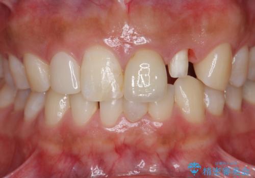 [ 歯が小さい ] 根管治療を伴う矮小歯治療の治療中