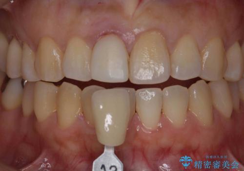 オーダーメイドで造る、自然な前歯セラミッククラウンの治療中