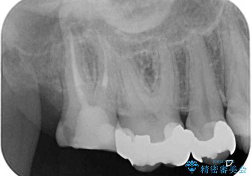 奥歯のむし歯が痛む セラミッククラウンとゴールドインレーによるむし歯治療の治療前