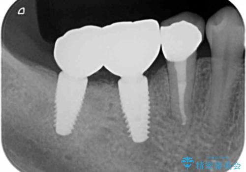 奥歯が割れている 抜歯してインプラントへ 40代女性の治療後