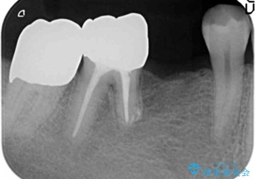 親知らずのせいで隣の歯が虫歯に 40代男性の治療中