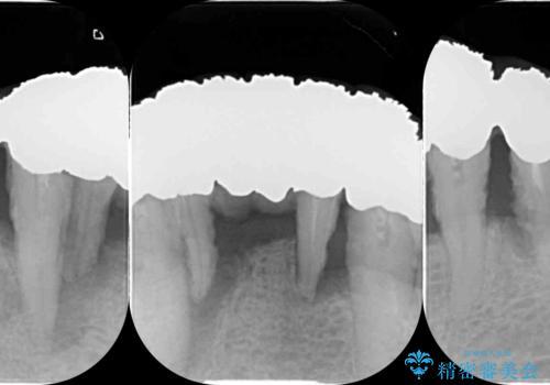 「 歯周病 再生治療 」再生治療で歯を残すの治療前