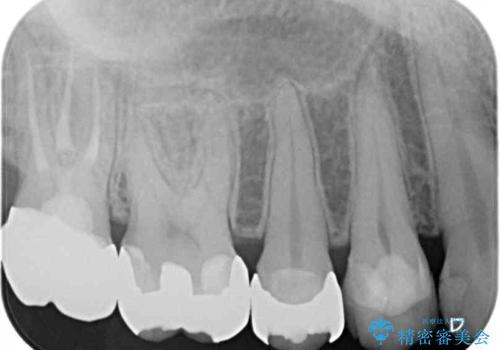 奥歯のむし歯が痛む セラミッククラウンとゴールドインレーによるむし歯治療の治療後