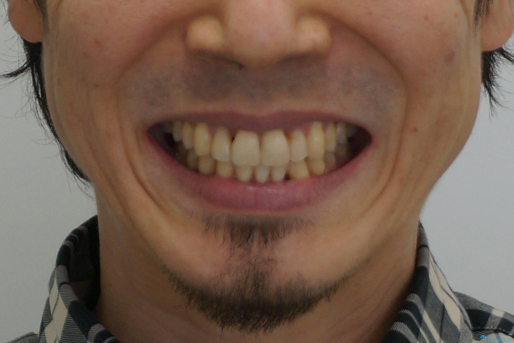 前歯の虫歯 矯正治療してからしっかり治すの治療後(顔貌)
