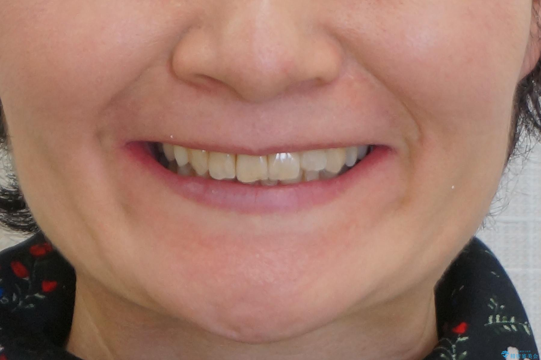 50代女性 インビザライン かみ合わせが深く、難しい症例の治療後(顔貌)