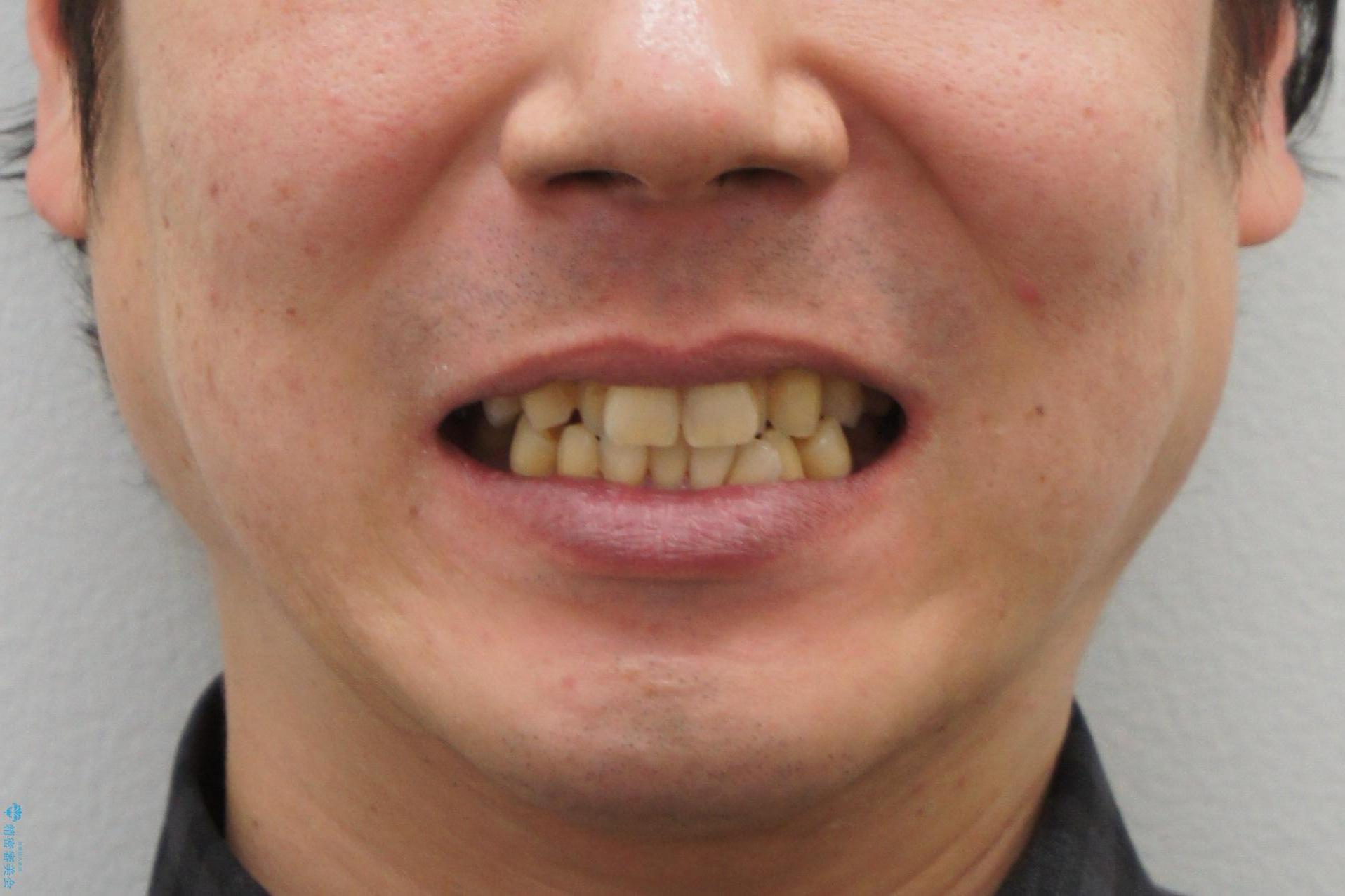 前歯の虫歯 矯正治療してからしっかり治すの治療前(顔貌)