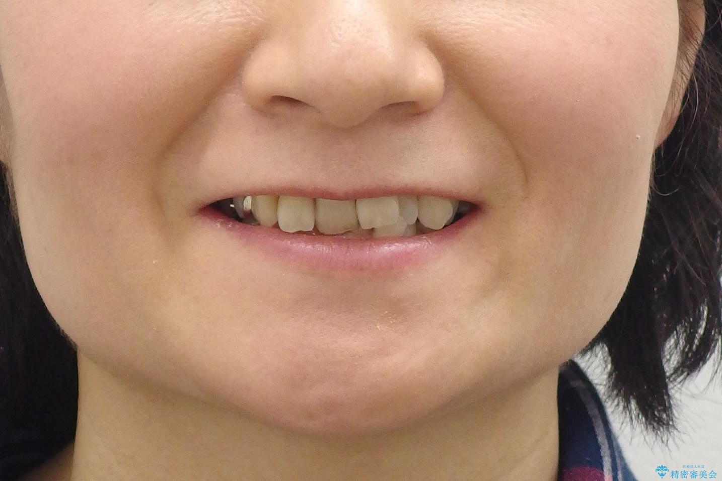 50代女性 インビザライン かみ合わせが深く、難しい症例の治療前(顔貌)
