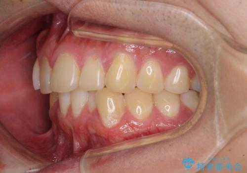 気になる前歯を治したい 短期間でのインビザライン矯正の治療前