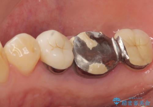 奥歯が割れている 抜歯してインプラントへ 40代女性の治療前