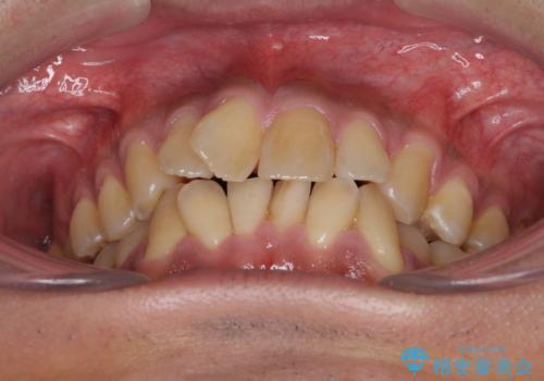 上顎の狭い歯列をインビザラインで拡大の治療前