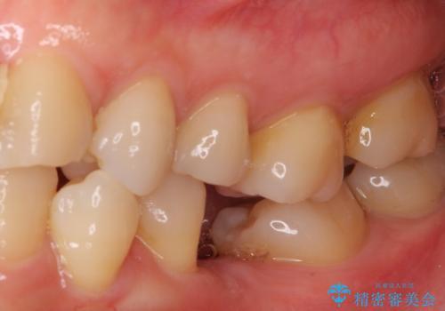 口元の突出感を治したい 治療中の歯も治したいの治療前