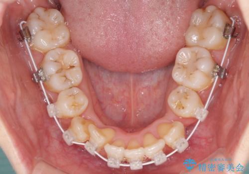 結婚式までに前歯をきれいにしたい 抜歯矯正とオールセラミッククラウンの治療中
