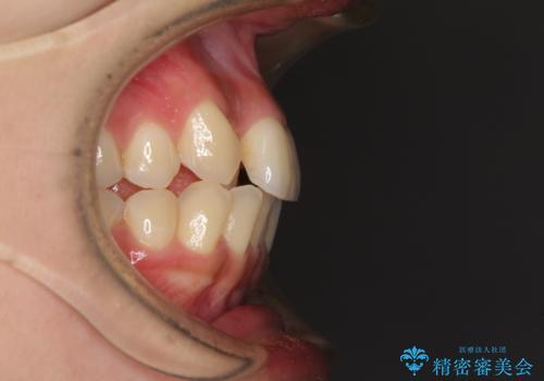 できる限り短い期間で終えたい ワイヤー矯正による咬み合わせの改善の治療前
