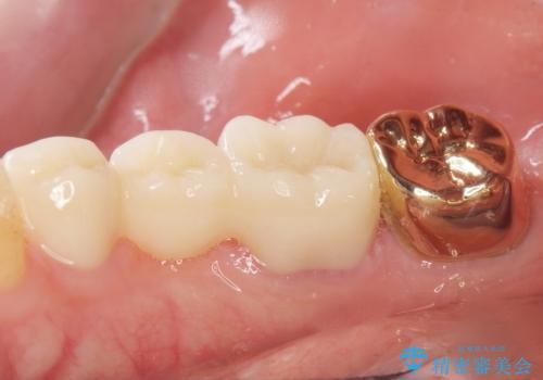 親知らずのせいで隣の歯が虫歯に 40代男性の治療後