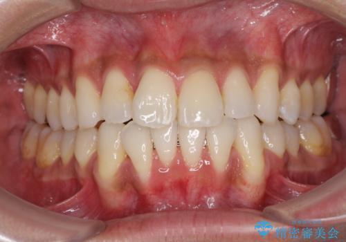 上顎の狭い歯列をインビザラインで拡大の治療中