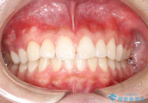 前歯の隙間がきになる インビザラインですきっ歯の治療の治療前