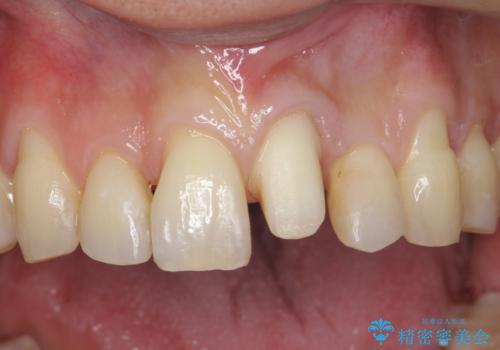 前歯の虫歯 矯正治療してからしっかり治すの治療中