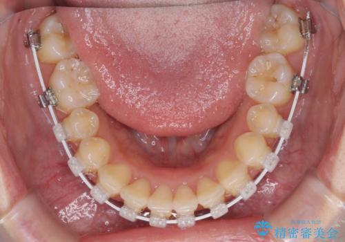 できる限り短い期間で終えたい ワイヤー矯正による咬み合わせの改善の治療中