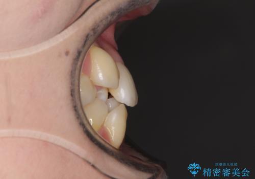 結婚式までに前歯をきれいにしたい 抜歯矯正とオールセラミッククラウンの治療前