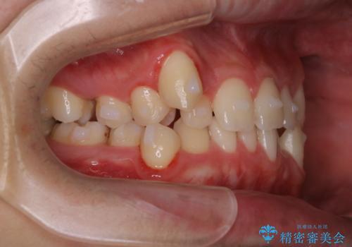 インビザラインでのマウスピース矯正中にクリーニングで口臭予防の治療後