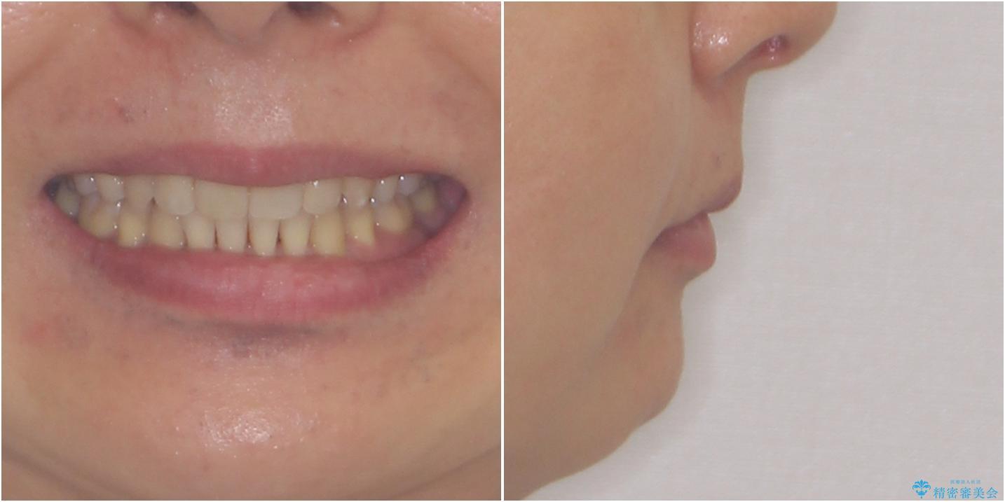 掃除しにくい前歯と閉じにくい口元 目立たないワイヤー装置での抜歯矯正の治療後(顔貌)