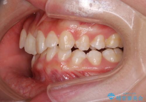 【インビザライン】抜歯矯正の治療前