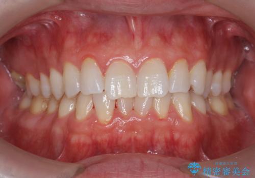オフィスホワイトニングで、歯を白く爽やかな印象に!の治療前