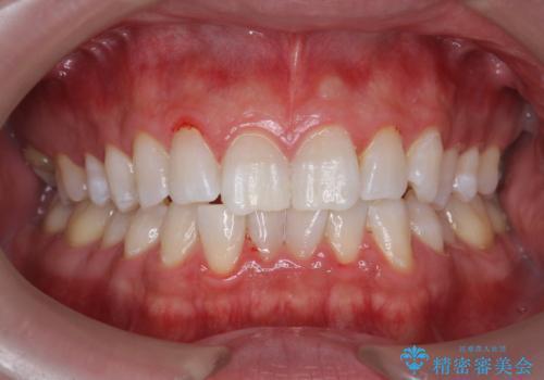 オフィスホワイトニングで、歯を白く爽やかな印象に!の治療後