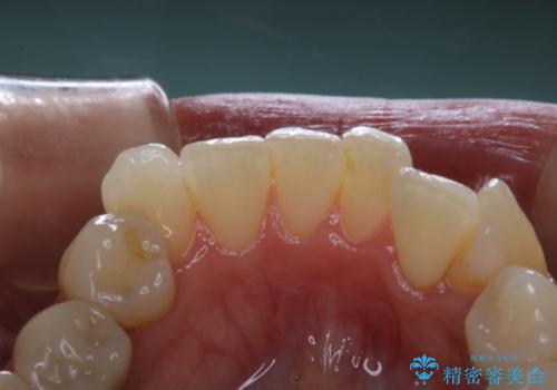 invisalignの型取り前に歯のクリーニングの治療前