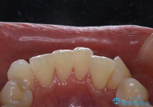 invisalignの型取り前に歯のクリーニングの治療後