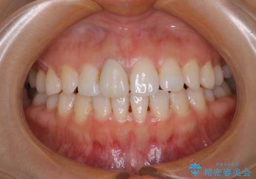 歯と歯の間の色が気になる 1日で綺麗に落とすの治療前