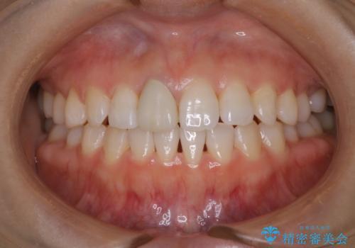 歯と歯の間の色が気になる 1日で綺麗に落とすの治療後