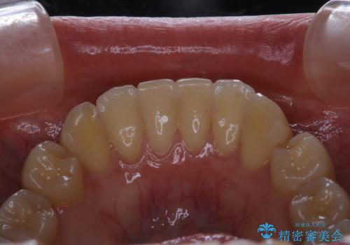 マウスピース矯正終了後にPMTCでよりきれいな歯にの治療前