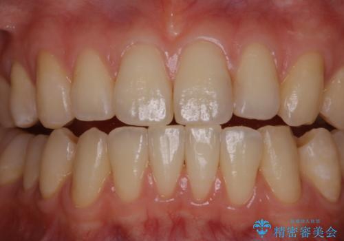 マウスピース矯正終了後にPMTCでよりきれいな歯にの治療後
