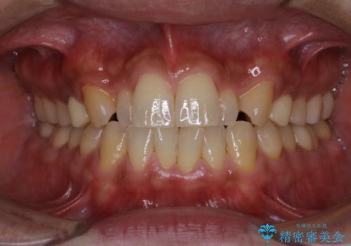 PMTCで笑った時の口元を自然に明るくしたいの治療後