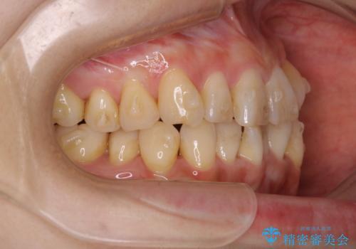 インビザラインでのマウスピース矯正中に歯を白くしたいの治療前