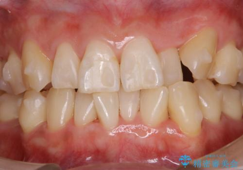 インビザラインでのマウスピース矯正中に歯を白くしたいの治療後