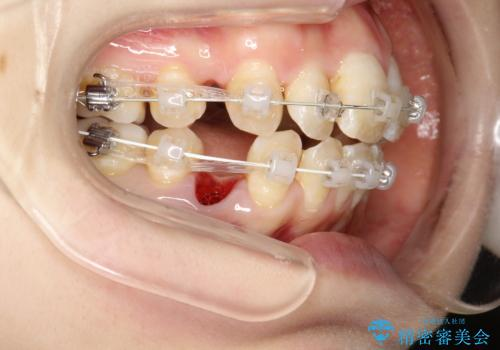 重度のガタガタ ワイヤーによる抜歯矯正の治療中