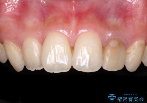 むし歯で変色した前歯をセラミッククラウンできれいにの治療前