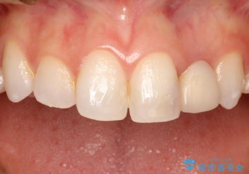 前歯の被せ物をやり替えたい。の治療前