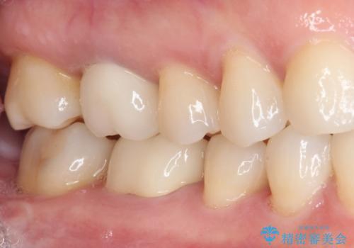 口元の突出感を治したい 治療中の歯も治したいの治療後