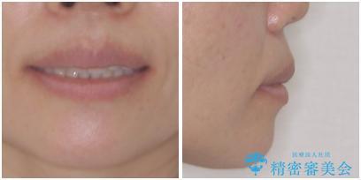 口元の突出感を治したい 治療中の歯も治したいの治療後(顔貌)
