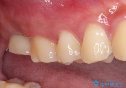 歯に穴を開けられてしまった インプラントによる奥歯の補綴治療の治療後
