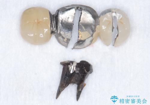 奥歯が割れている 抜歯してインプラントへ 40代女性の治療中