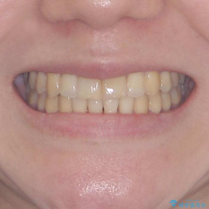 上下前歯のデコボコをきれいに インビザラインによる矯正治療の治療後(顔貌)